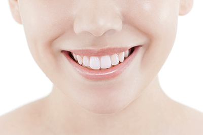 A Voucer for Dental Treatment (Whitening)